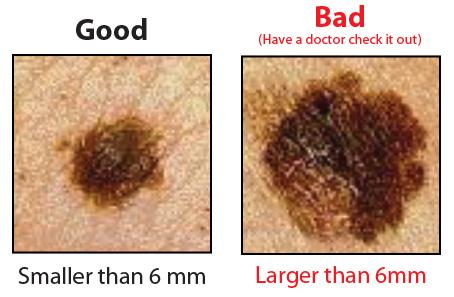 Cancer Moles, Do You Have Them?