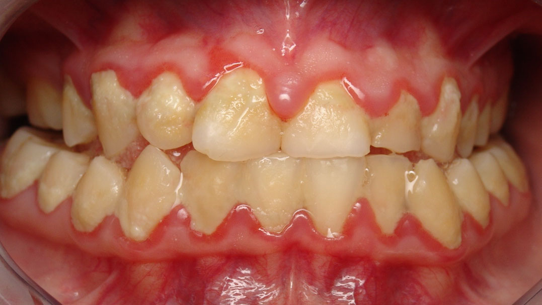 how to use teeth while giving oral