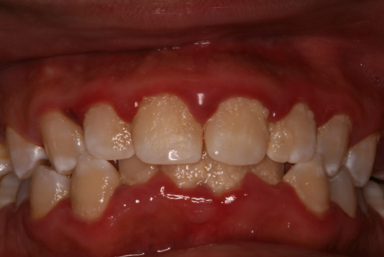 Is Dental Plaque Bothering You Here S How To Brush It Off