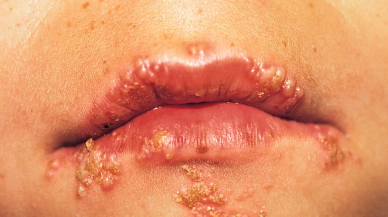 Question 1, Can Shingles Be Mistakened For Herpes (by A Look Or Looking At)