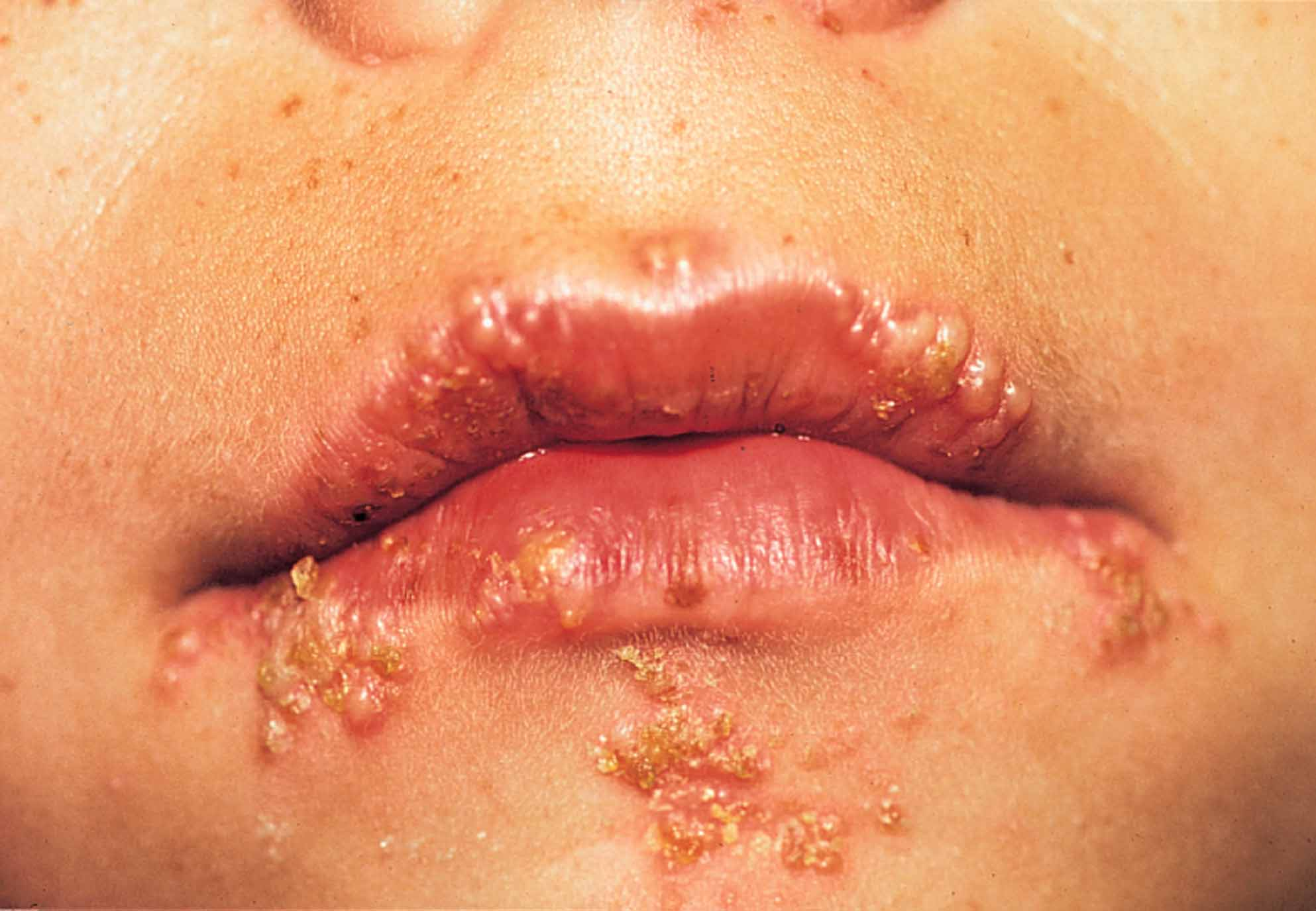 Infections simplex cold herpes sores virus