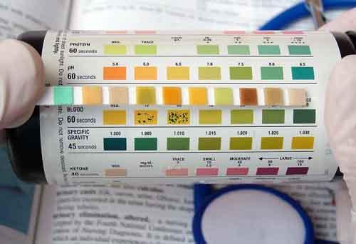 Healthy bilirubin levels in adults