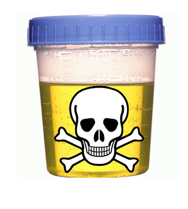 What Is Urine Drug Screen?