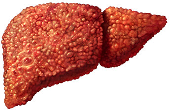 9 Amazing Home Remedies For Liver Disease