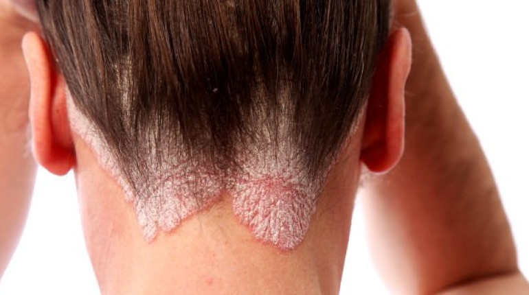 How Can Smoking Affect Psoriasis?