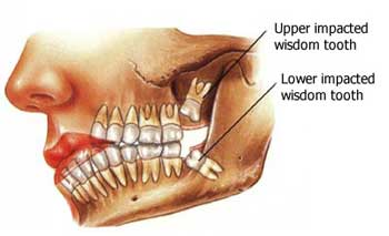 Wisdom Teeth Removal, Is It Really Necessary?